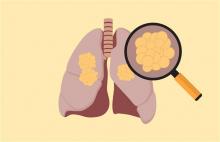 une nouvelle méthode de détection du cancer du poumon par prise de sang