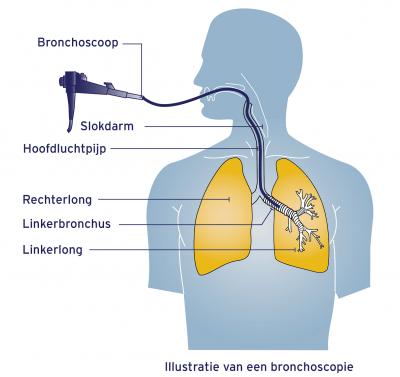 Bronchoscoopie