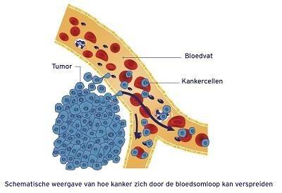 Disseminatie in bloedsomsloop