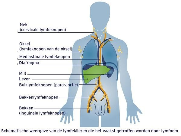 Lymfeklieren