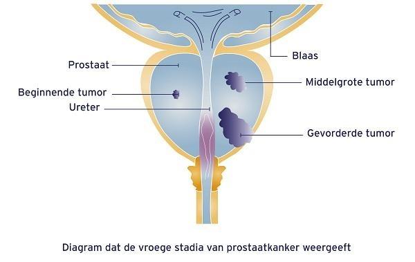 Uitzaaiingsbalans prostaatkanker