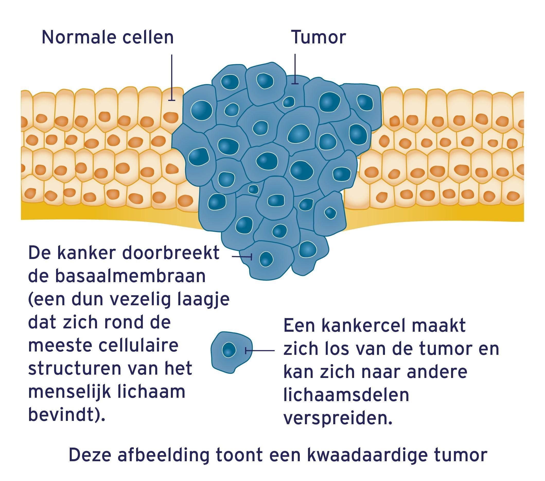kwaadaardige-tumor