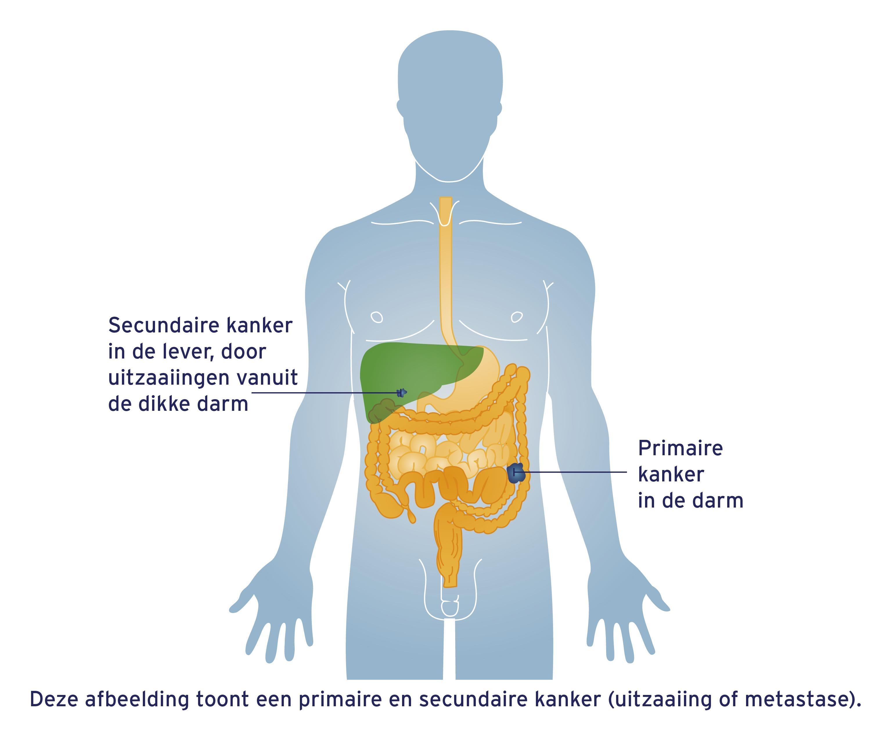 primaire-en-secondaire-kanker